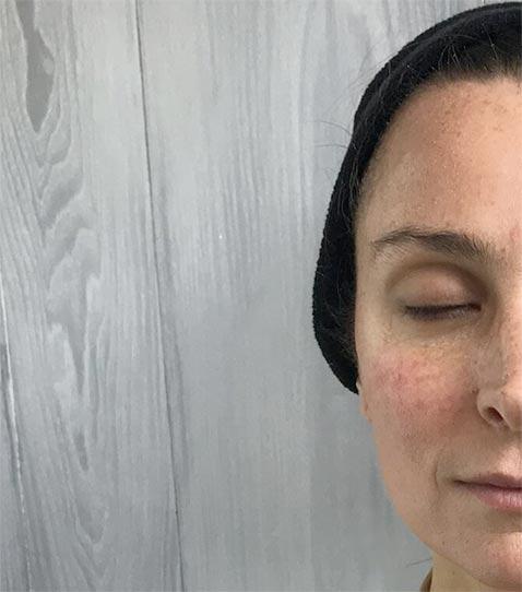 CryoToning Face Before